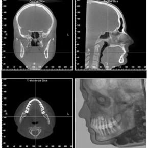 Chirurgie maxillo-facial pour corriger les déformations de la bouche, des mâchoires et de la face